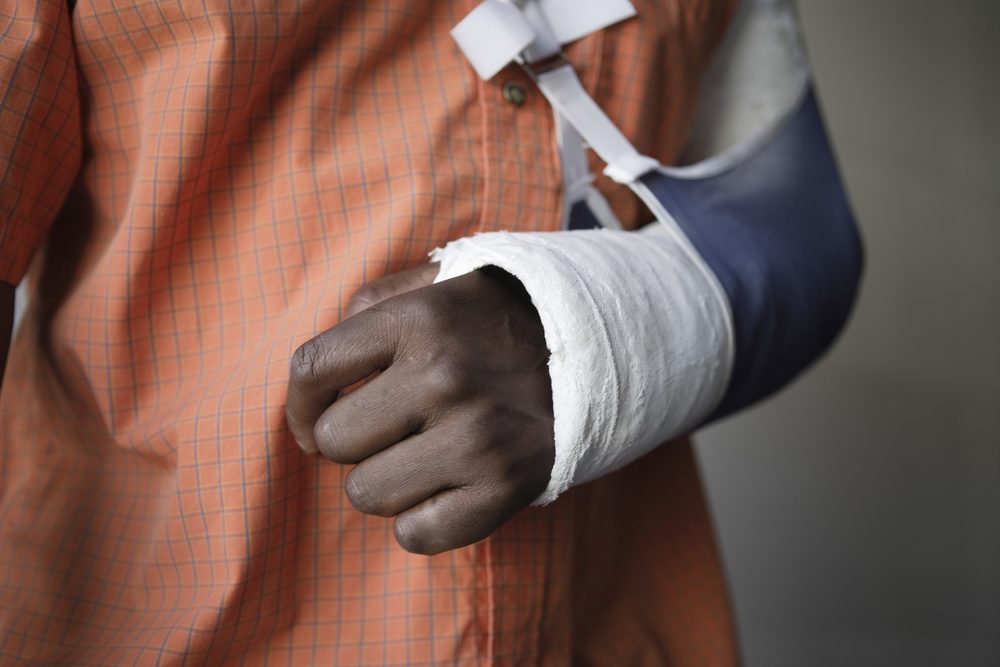 Man with cast on arm